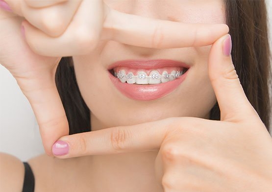benefits of orthodontics canley heights