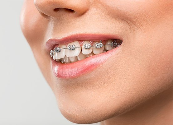 braces canley heights