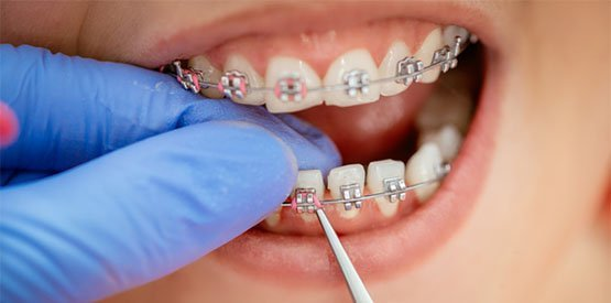 braces care canley heights