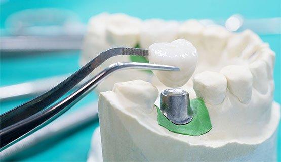 broken dental restorations first aid steps canley heights