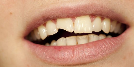 causes of broken tooth canley heights