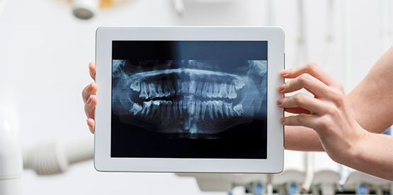 causes of tmj disorder canley heights
