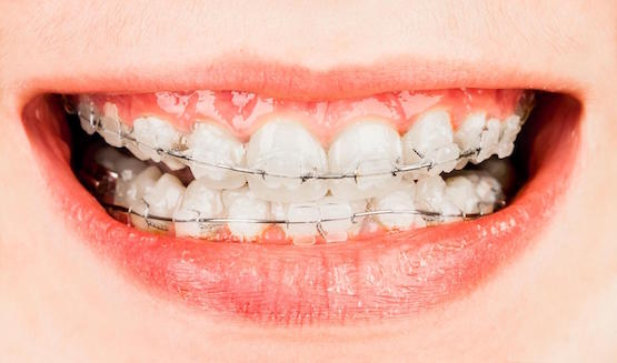 affordable orthodontics Canley Heights
