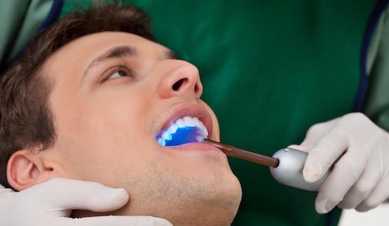 affordable emergency dentist canley heights