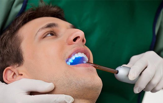dental abscess canley heights