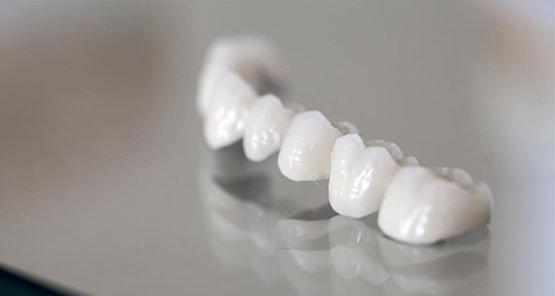 dental bridges blurb canley heights