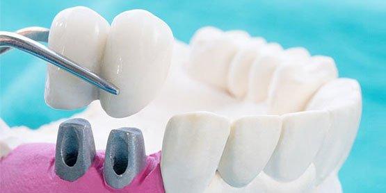 dental crowns blurb canley heights