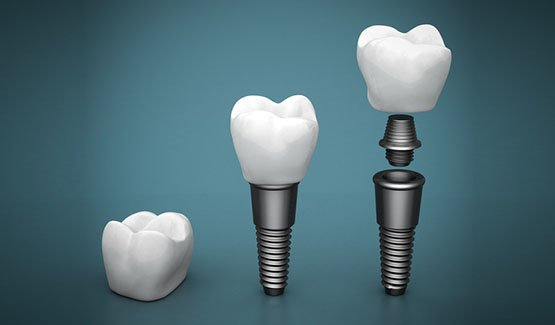 dental implants canley heights