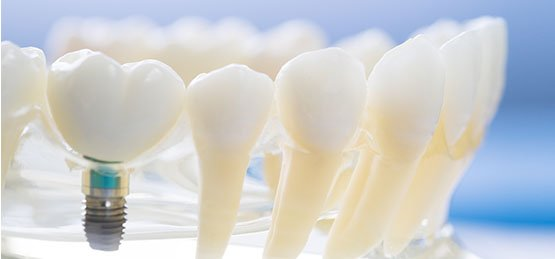 best dental implants canley heights