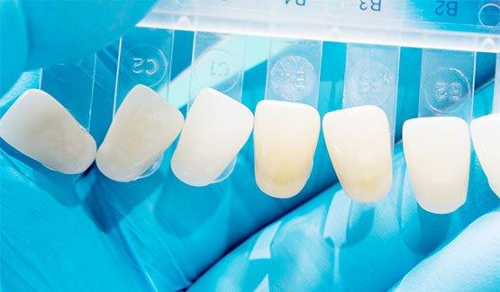dental veneers canley heights