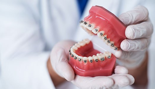 how to clean your braces canley heights