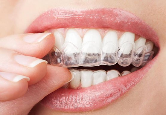 cheap orthodontics canley heights
