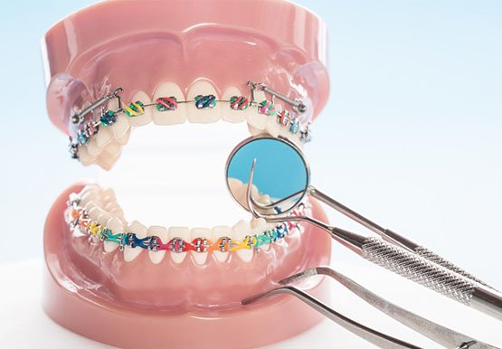 orthodontics canley heights