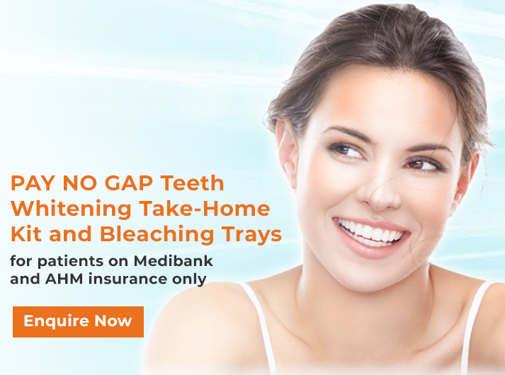 teeth whitening canley heights