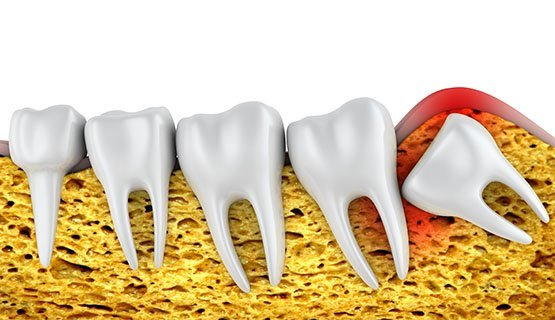 wisdom tooth extraction canley heights