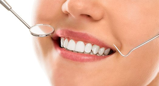 benefits of dental bonding canley heights