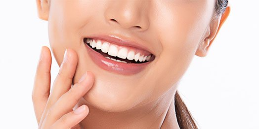 dental bonding canley heights
