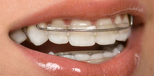 the benefit of retainers canley heights