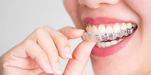 invisalign canley heights
