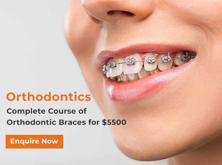 orthodontic promotion banner canley heights