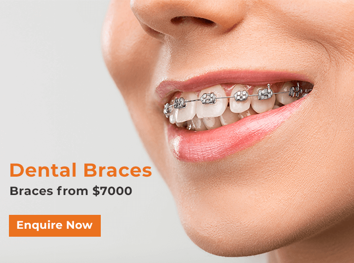 braces promotion banner home canley heights