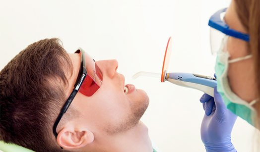 fissure sealant at-home care canley heights